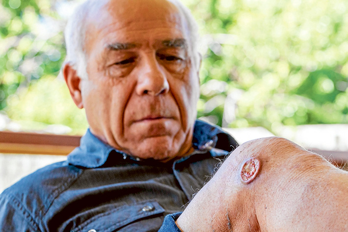 Sore spot: Rye's Vincent Misitano thought his ulcer was just a harmless insect bite. Picture: Yanni